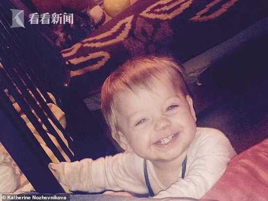 男婴洗澡跌进开水盆大面积烫伤 抢救11天后夭折
