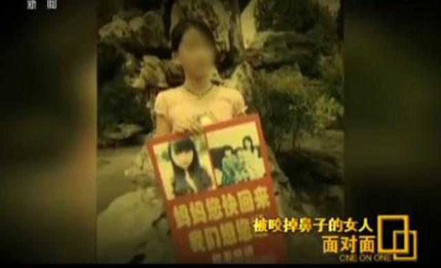 农村女人性交视频_家暴中被咬掉鼻子的女人:在农村离婚很丢人