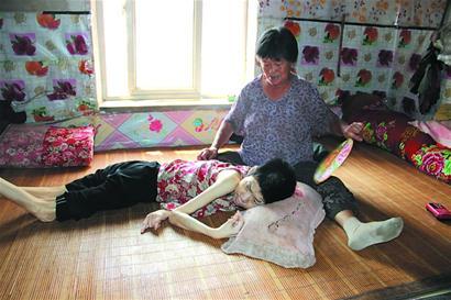 胶州女子患病卧床49年 母亲独自照顾不离不弃
