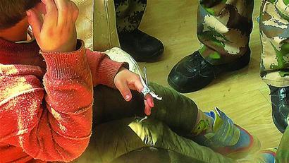 男孩玩耍时戴上捡来螺帽险酿险情