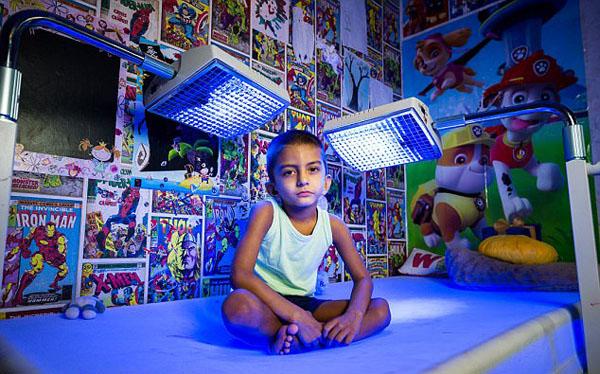 英国4岁男童患怪病 每天需蓝光照射20小时保命